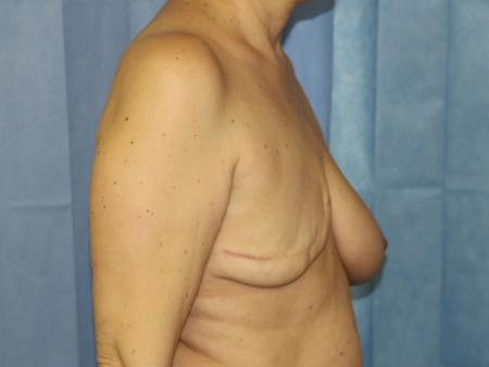 lipografting-11
