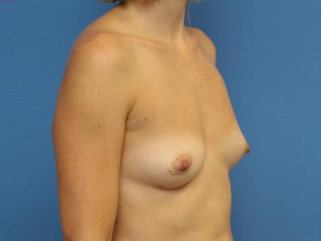 lipografting-15