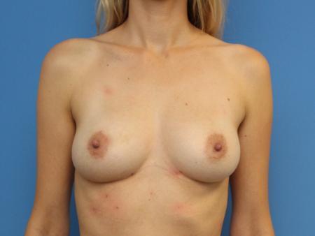 lipografting-4