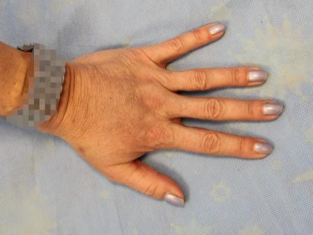 lipografting-8