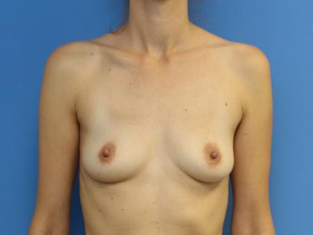 lipografting-3