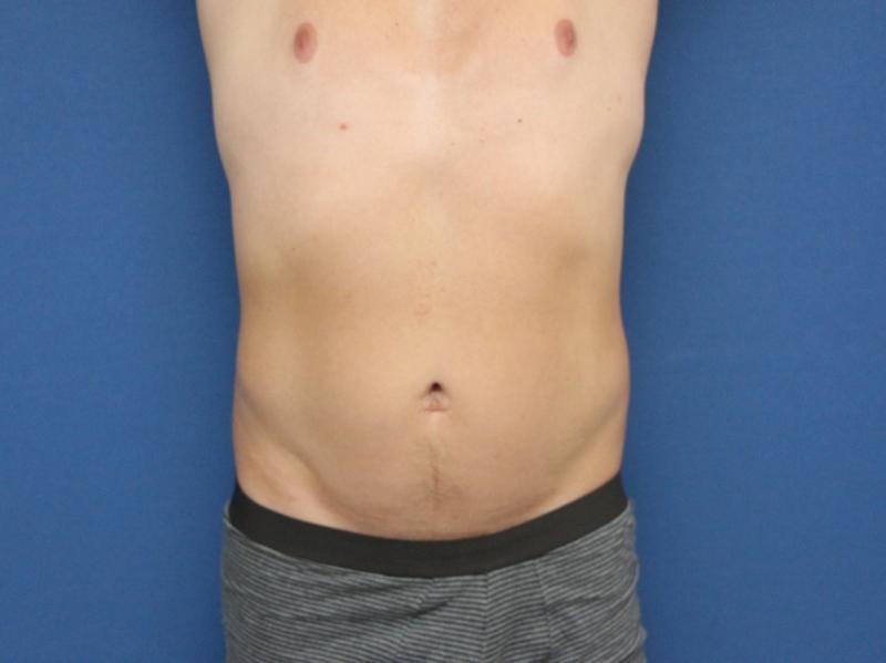 liposukce-2