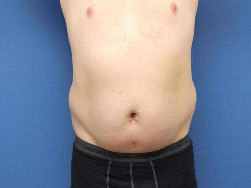 liposukce-1