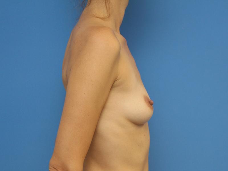 lipografting-1